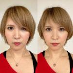 自分で自分にメスを入れようとした吉村の小顔整形ストーリー1