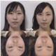 小顔矯正 頭蓋骨矯正で【一目瞭然で変わった!!!】